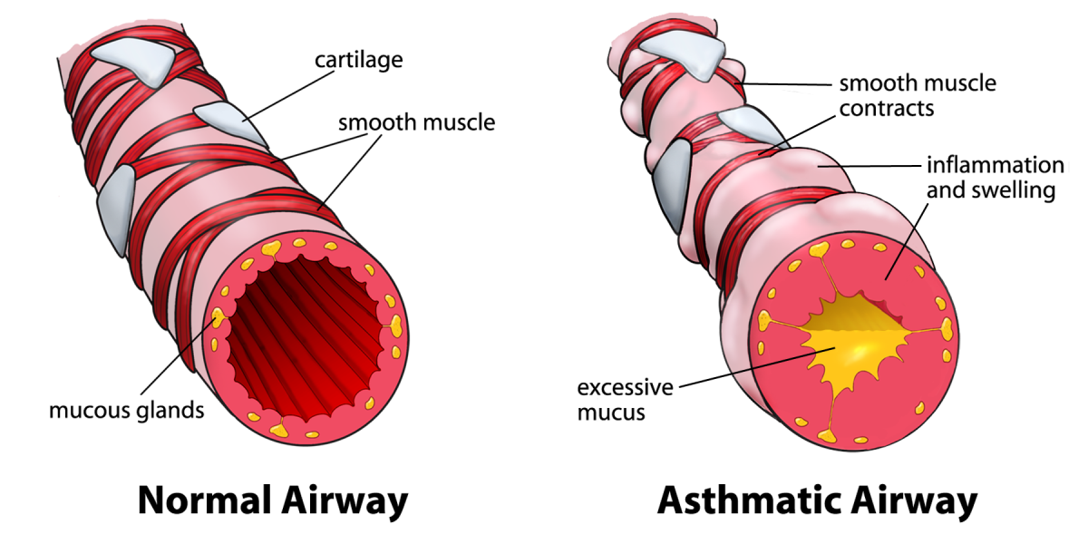 Drawing of Normal Airway and Airway during an Asthma Attack